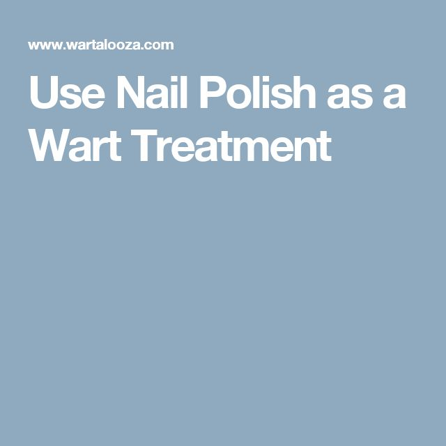 Use Nail Polish as a Wart Treatment http://www.wartalooza.com/treatments/trichloroacetic-acid