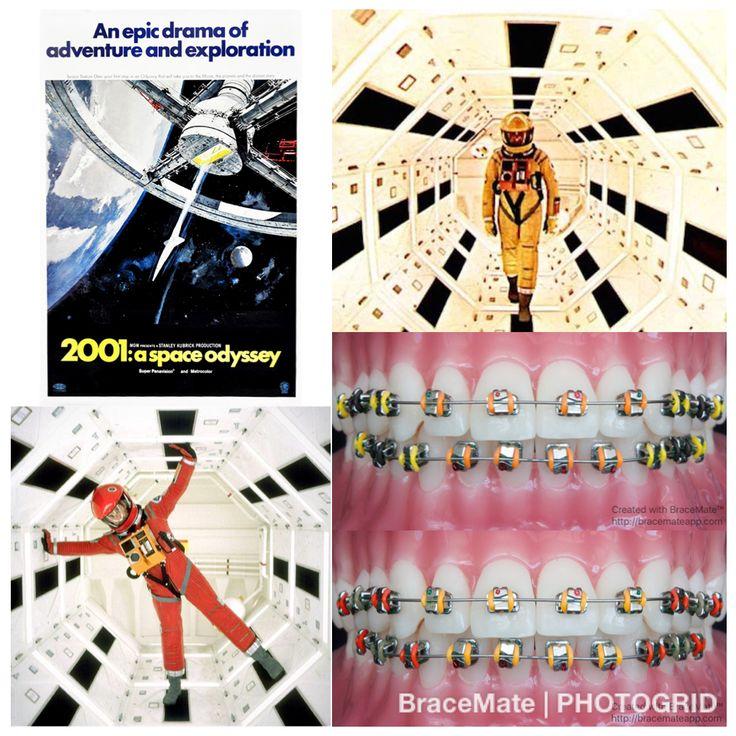 #2001 #2001aspaceodyssey #spaceodyssey #hal #hal9000 #stanleykubrick #kubrick #monolith #evolution #artificialintelligence #ai #metrogoldwynmayer #mgmstudios #epic #sciencefiction #scifi #jupiter #braces #colour #colours #app #movie #filmography #film #cinema #cinematography #orthodontics #orthodontist
