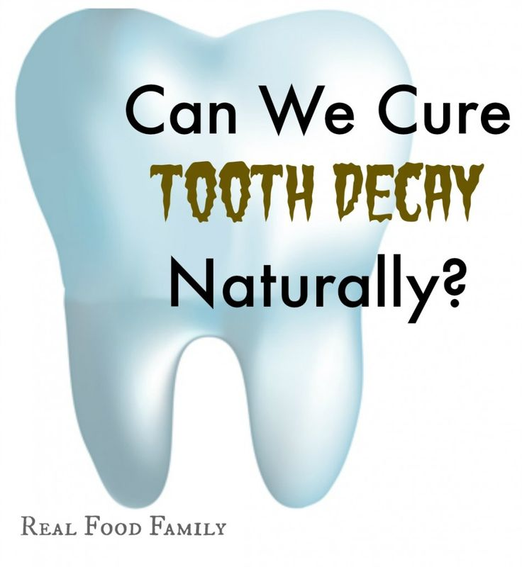 Do you buy it when your child's dentist recommends drilling and even a root canal on baby teeth?! Maybe, just maybe, we Cure Our Kid's Tooth Decay NATURALLY instead.