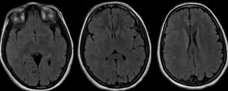 Normal Brain Mri With Contrast Images