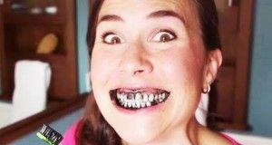 Ça a l'air moche, mais en quelques minutes seulement, vos dents seront éclatantes de blancheur !