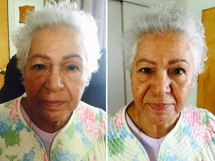 Another great Before and After! Works on all skin types!