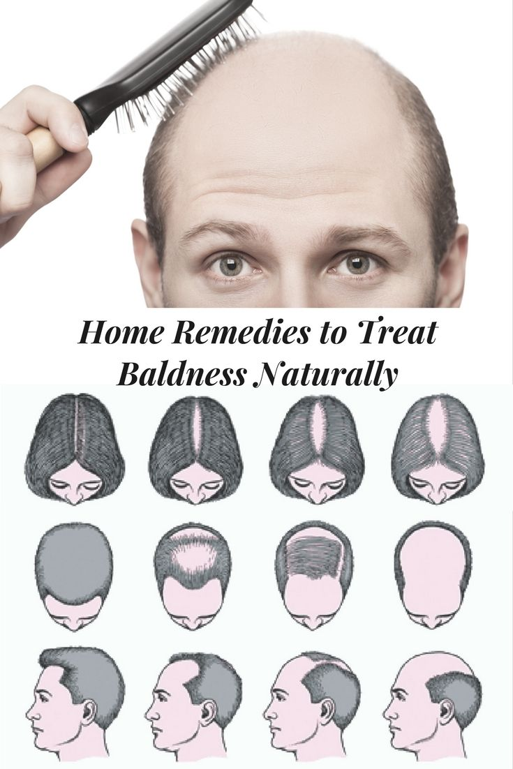 Home Remedies for Baldness  Here are some best natural and herbal remedies which you can try it at home to get rid of baldness and to grow your hair naturally without any side effects. #DIYRemedies
