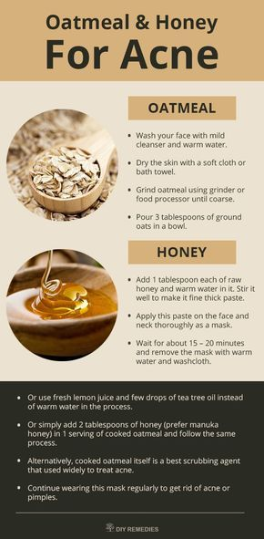 Mask – 1: (Oatmeal – Honey)  Honey has antibacterial, antioxidant and anti-inflammatory properties that fight against the acne and nourishes the damaged skin.