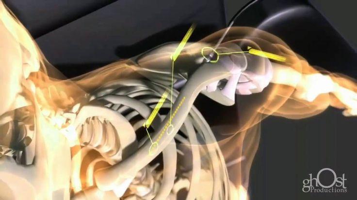 Kemik Kırıkları Nasıl Onarılır izleyin
