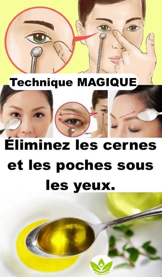 Les 5 remèdes les plus pertinents pour se débarrasser des cernes et des poches sous les yeux.