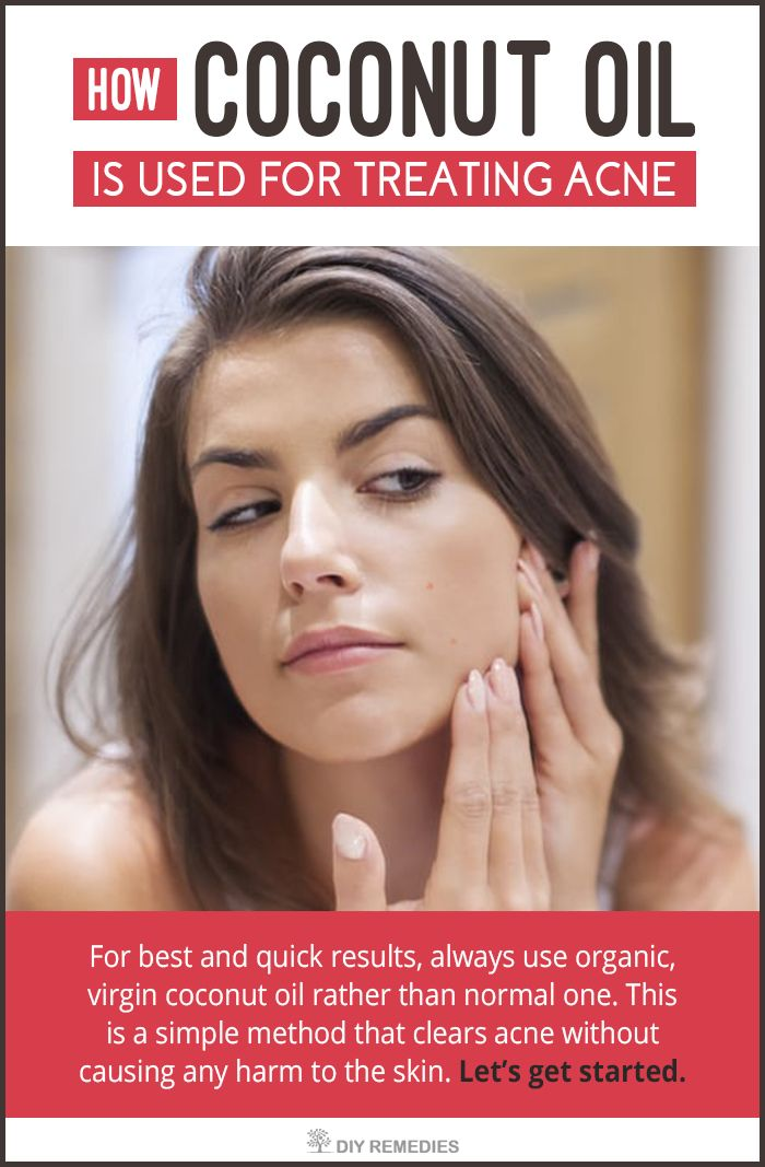How Coconut Oil is used for Treating Acne:  Coconut oil can be used in many ways but discover these best ways of using coconut oil for preventing acne and its scars successfully from the skin. Let's get started.