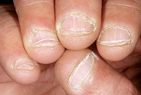 Gnawed Nails ~~ Biting your nails may be nothing more than an old habit, but in some cases its a sign of persistent anxiety that could benefit from treatment. Nail biting or picking has also been linked to obsessive-compulsive disorder. If you cant stop, its worth discussing with your doctor.