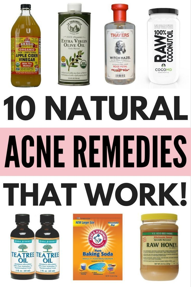 Looking for natural acne remedies to teach you how to get rid of acne (and the pimples and blackheads that come along with it) without using harsh products on your skin? We've got you covered. Using ingredients like coconut oil, raw honey, baking soda, apple cider vinegar, and tea tree oil, this collection of 10 DIY acne remedies will teach you how to banish acne for good using products you already have lying around the house.