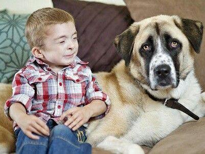 Un niño con una extraña condición y su perro de tres patas tienen un extraordinario lazo (video)   Artículo completo: www.veonoticia.com