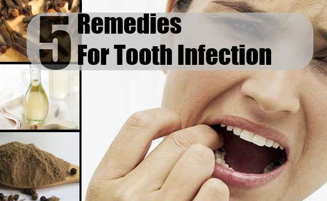 5 Home Remedies For Tooth Infection - Natural Treatments & Cure For Tooth Infection | Find Home Remedy & Supplements