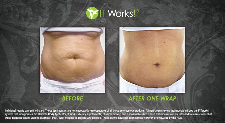 After 1 use of the It Works! Wrap!