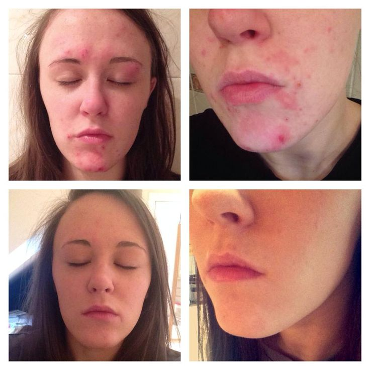 Results after 14 days of using our SKIN range.  I was at training with Natalie today, looks amazing as you can see. :-)