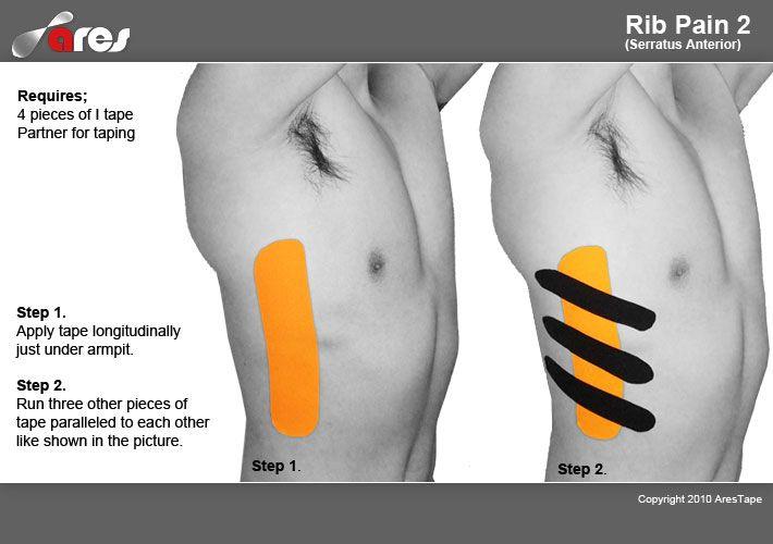 Rib pain treatment by kinesiology tape #Ares #Rib #Pain #KinesiologyTape