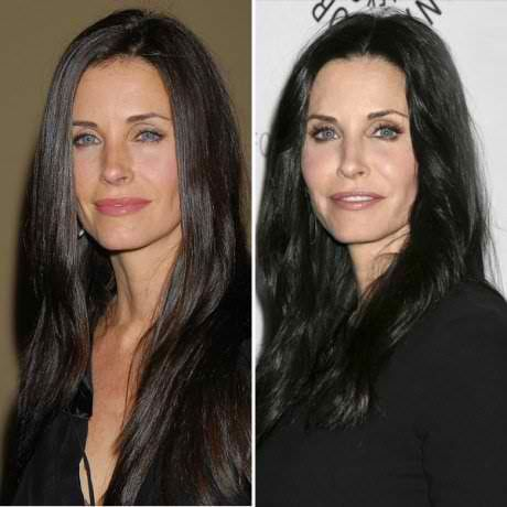 Courtney Cox Plastic Surgery Gone Wrong Pictures To Pin On