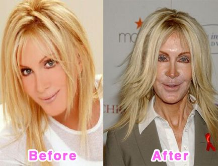 The picture on the right scares me somewhat... Joan Van Ark
