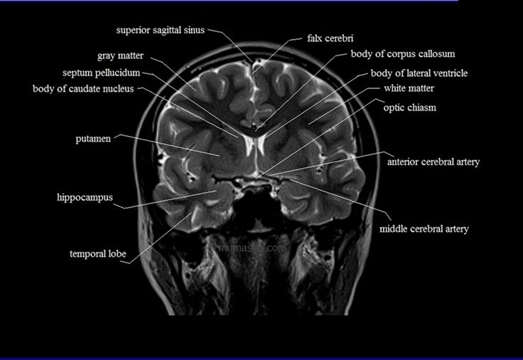 The 408 best Radiology images on Pinterest | Radiology, Anatomy and ...