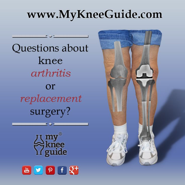 1000+ Images About Knee Replacement, Total On Pinterest