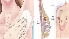 Pochi sanno che la causa principale di cancro al seno è nei prodotti sbagliati che usiamo.Ecco come prevenirlo con questa miscela da applicare sulle ascelle