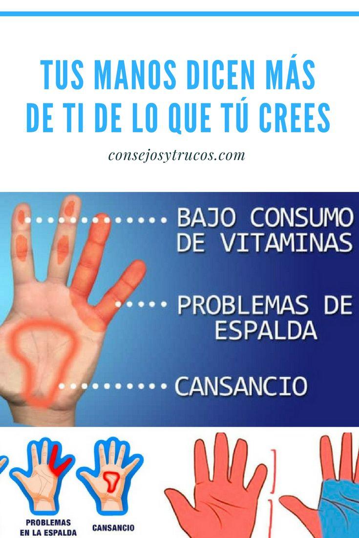Conoce 5 cosas que las manos dicen sobre la salud