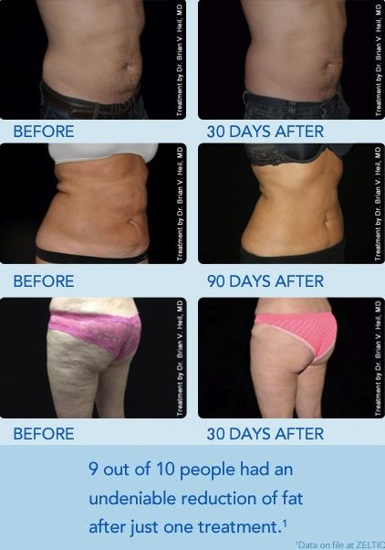 Coolsculpting Before And After Want To Shed Some Extra