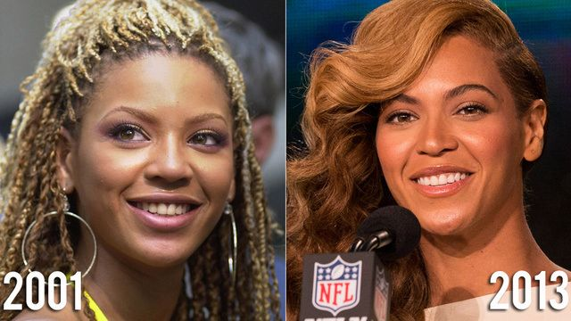 Beyonce Nose Before After Plastic Surgery