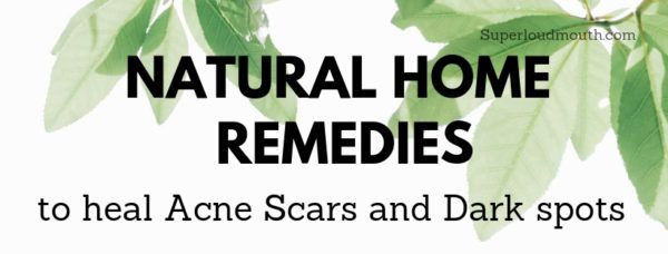 30 Natural Home Remedies to heal Acne Scars overnight