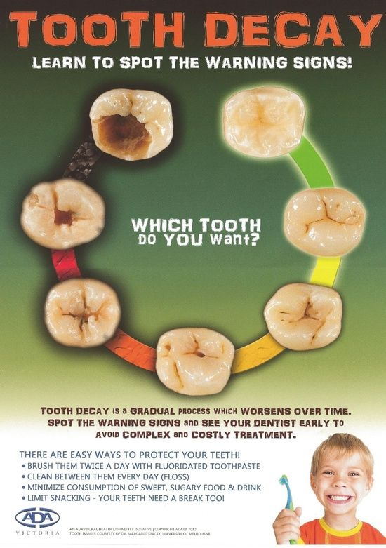 Bacteria causing tooth decay convert sugars into acid byproducts that can lead to break down in tooth structure and manifest as a cavity. Disease progression results from shift in imbalance in mouth and dental plaque that can be contributed by patient behaviors like diet composition and frequency, oral hygiene, and fluoride exposure.