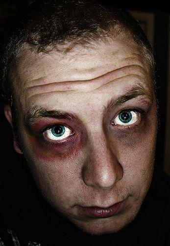 Black Eyes | Jokes of the day (55601)