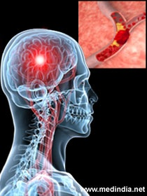 Stroke occurs when the oxygen supply to the brain is cut off either due to a blockage (Ischemic stroke) or damage (Hemorrhagic stroke) in the blood vessel. I May not have had a stroke, however, I have suffered from the same effects from my big overdose.