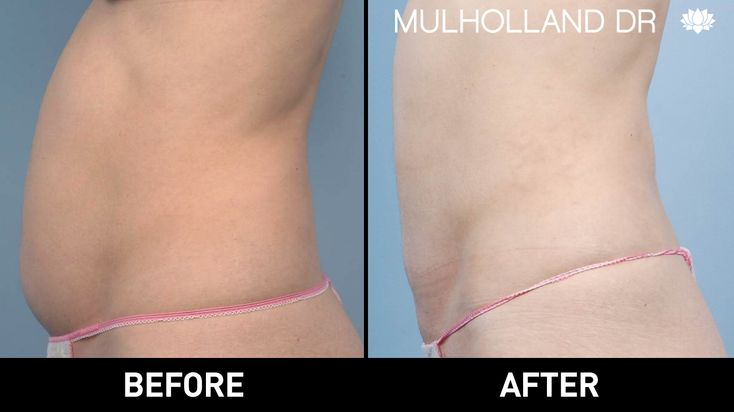 #Liposuction #LiposutionToronto #Lipo #LipoToronto Before and after photo of Toronto patient who underwent liposuction at SpaMedica http://www.spamedica.com/cosmetic-plastic-surgery-toronto/body-contouring-reshaping-toronto/liposuction-toronto/