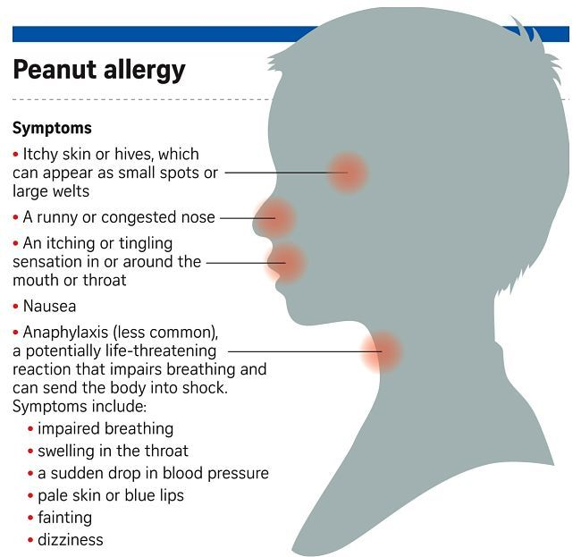 Pin On Allergies Causes Triggers Symptoms And Prevention Tips