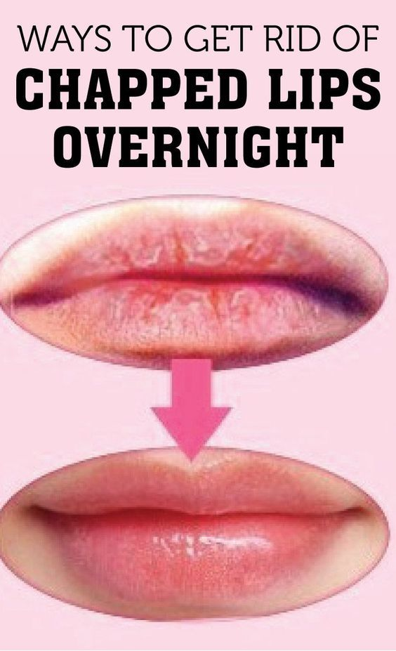 Ways to Get Rid of Chapped Lips Overnight | Cute Parents