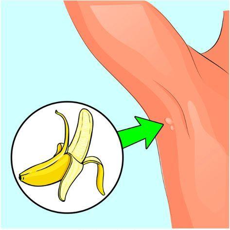 Liečba papilomy v Nitre