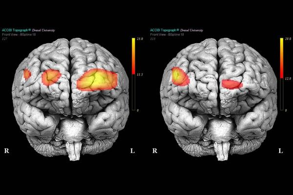 It's All in Your Brain: Borderline Personality Disorder and the Brain.  The field of psychiatry is heating up, and neuroscientists are discovering what is going on in our minds in the fog of mental illness.  Subscribe to life's Learning's blog at: http://lifeslearning.org/ Twitter: @sapelskog. Counselors, join us at: Facebook.com/LifesLearningForCounselors*
