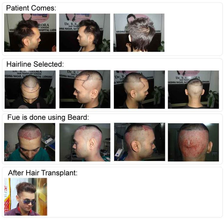 Hair transplant is the best surgery recommended to cope up with hair loss or baldness problems. FUE hair transplant is a surgical procedure which involves the transformation of individual hair follicle from donor site to recipient site while in FUT hair transplant surgery, 4 to 6 hair follicles are transplanted at a time.