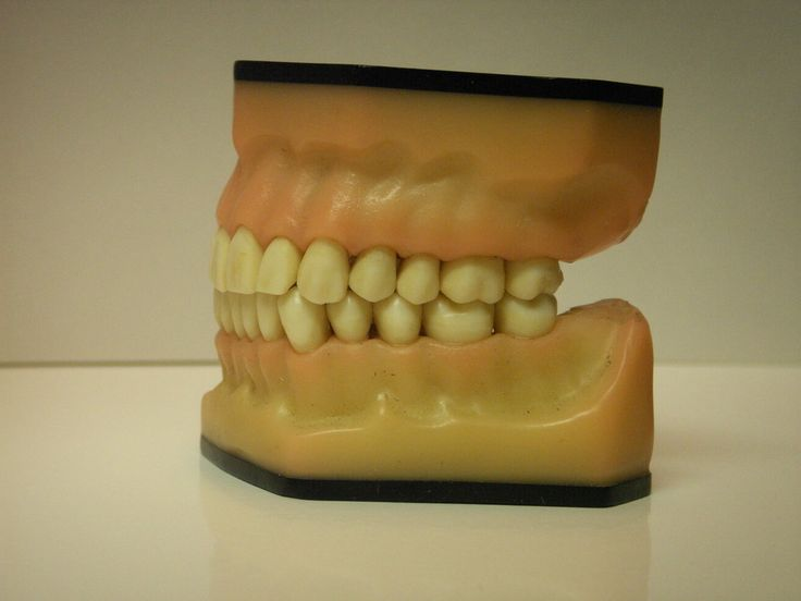 teeth side view always interesting what you can find when you type in cosmetic surgery and other