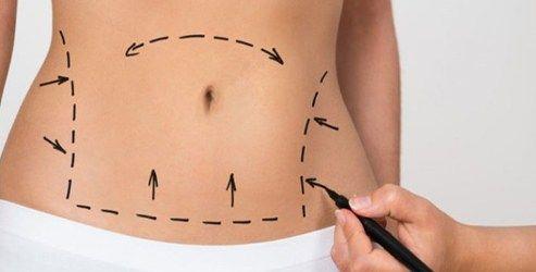 Abdominoplastia – Tudo sobre a cirurgia que refaz o abdômen!