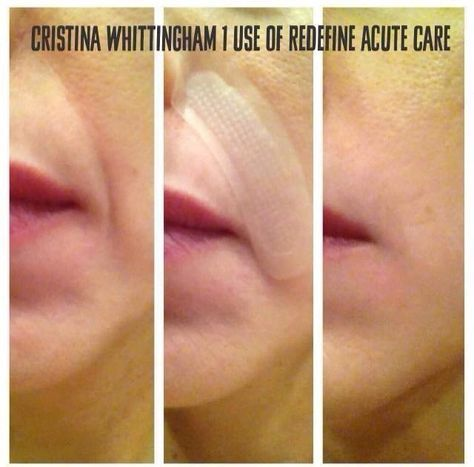 Rodan and Fields Acute Care Results, 1 Use