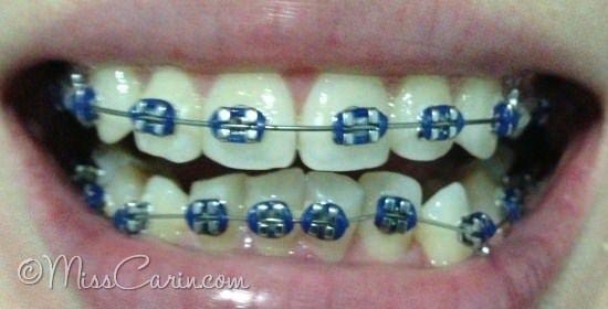 Navy Dark Blue Braces | braces color ideas | Pinterest ...