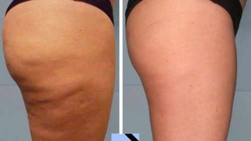 Einfache, hausgemachte Cellulite-Behandlungen - Besser Gesund Leben