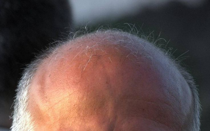 Researchers at UT Southwestern may have discovered the reason people's hair goes gray and they eventually go bald.