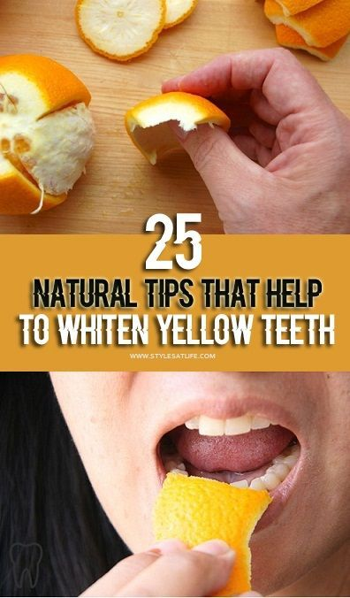 25 Natural Home Remedies For Yellow Teeth To White Teeth.