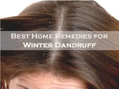 Although there is no permanent cure for dandruff, certain lifestyle changes and some simple home remedies will help you to prevent and control dandruff to a large extent. Aloe Vera, Amla, beetroot leaves, neem, curd, lemon, papaya and fenugreek seeds or methi work wonders in controlling hair fall and #dandruff.