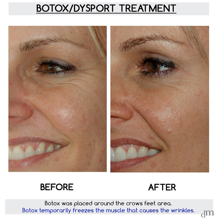 Check out another amazing #Botox result by Dr. David Mabrie!   Book now, 415.445.9513. www.yourfaceinourhands.com   #beforeandafter #injectable #nonsurgical #beauty #dysport #drmabrie #plasticsurgeon #plasticsurgery #anatomy #wrinkles #finelines #youthful #appearance
