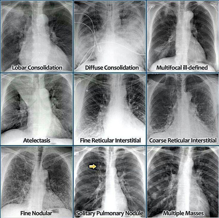 Essay on x rays