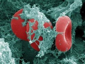 pengobatan alternatif kanker darah di jakarta, efektif efisien dan terstruktur dengan baik