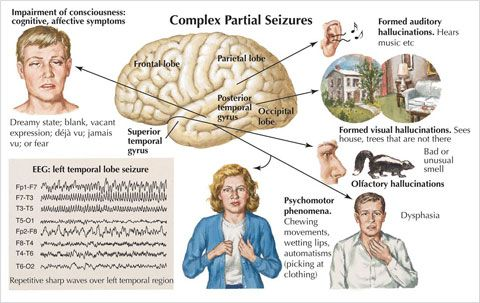 Temporal Lobe Seizure - Symptoms, Diagnosis & Treatment