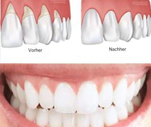 Zahnfleischrückgang kann ziemlich alarmierend sein. Es ist nicht nur schmerzhaft, es kann auch zu Taschen oder Lücken zwischen den Zähnen und dem Zahnfleisch führen, so dass sich schädliche Bakteri…