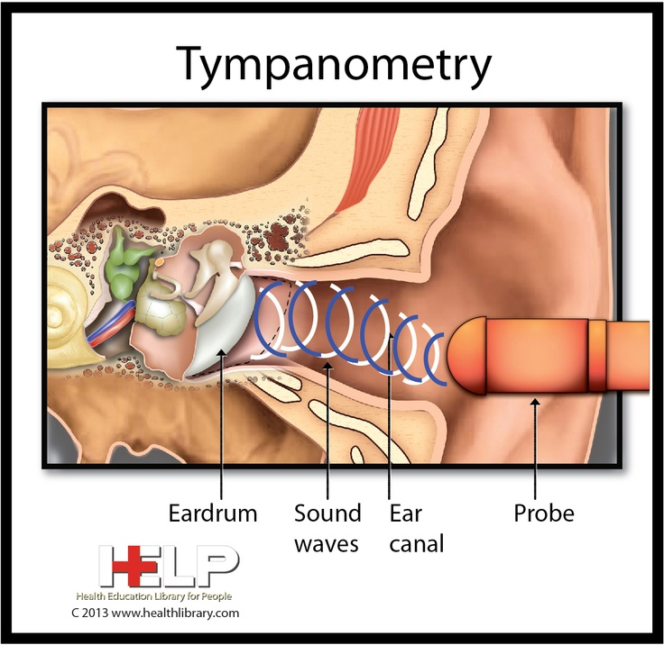 8 best images about Tympanometry on Pinterest